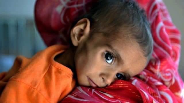 اوچا: ۵۰ سلنه افغان ماشومان د خوارځواکۍ له ګواښ سره مخ دي.